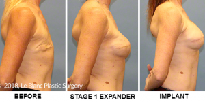 Delayed breast reconstruction